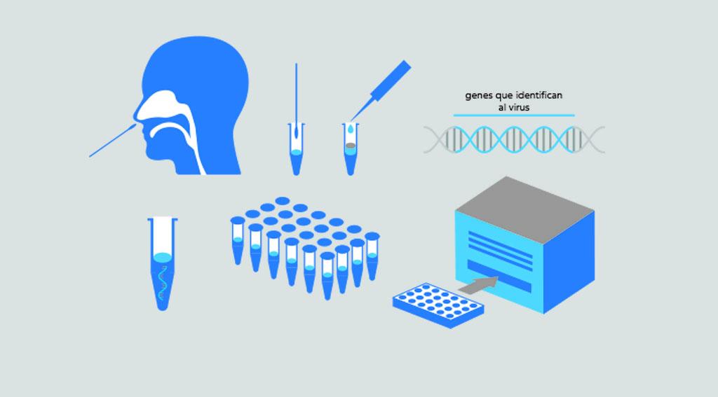 Noticias Chile   Clínica de las Condes engañaba a la gente vendiendo PCR falsos a $60 mil pesos