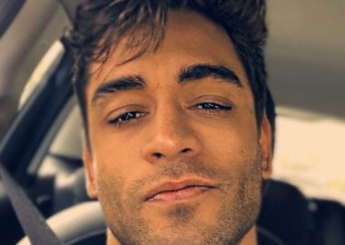 Noticias Chile | Ex bailarín Thiago Cunha lo está pasando mal, tiene parálisis en su rostro