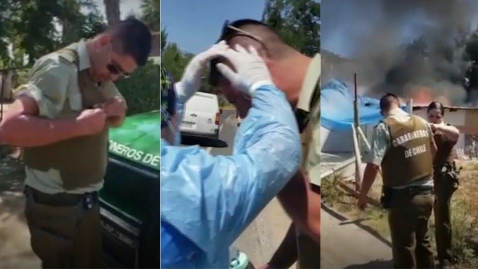 Noticias Chile   Carabinero resulta con graves quemaduras tras salvar la vida de dos personas en un incendio